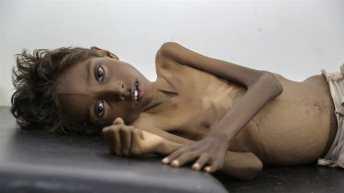 Glad u Jemenu
