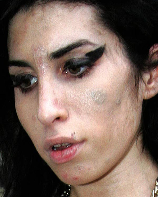 Amy Winehouse semen allergy or crystal meth