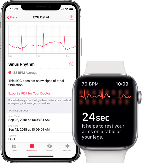 Watchos 5.1.2 incluye electrocardiograma para Apple Watch Series 4