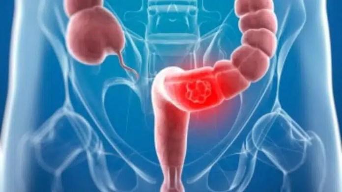 Carne Roja consumirla cáncer al colon