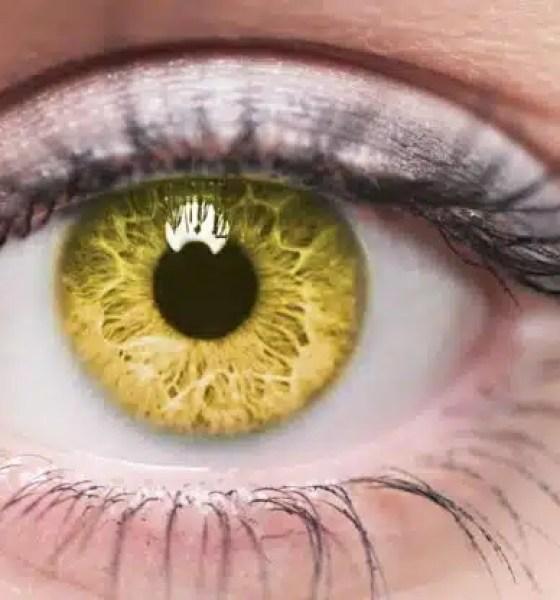 ojos amarillos