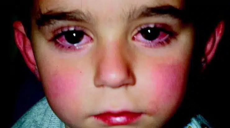 ¿Qué es la Enfermedad de Kawasaki? síntomas y tratamiento