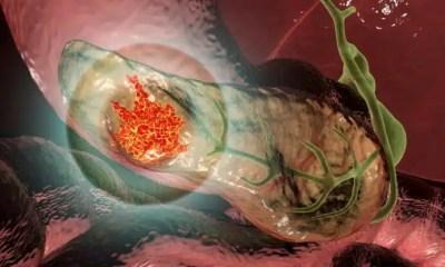 cáncer de páncreas
