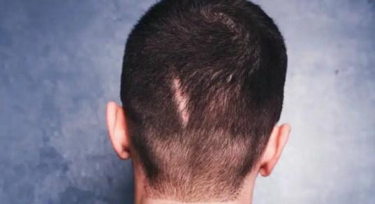 alopecia_cicatrizal