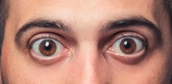 ojos_saltones