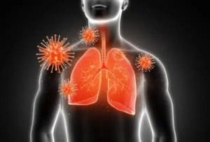 Capacidad pulmonar reducida