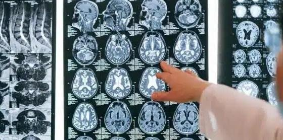 ¿Qué sabemos hasta ahora sobre la misteriosa enfermedad cerebral?