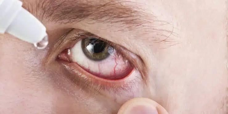 ojos secos síntomas