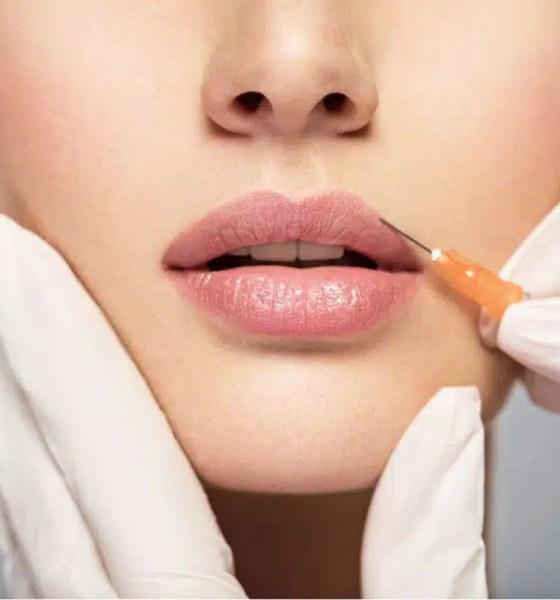 botox en los labios