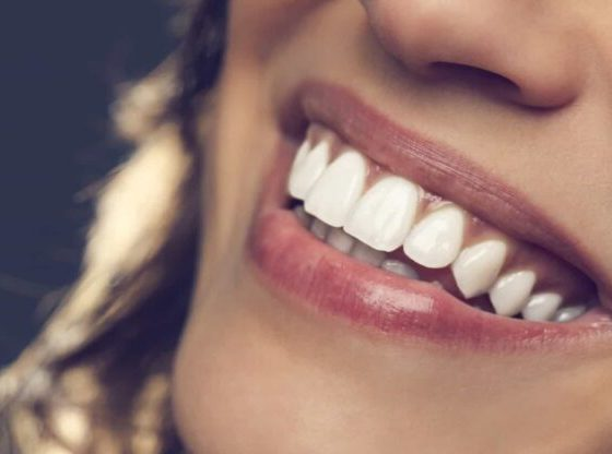 5 consejos para una hermosa sonrisa