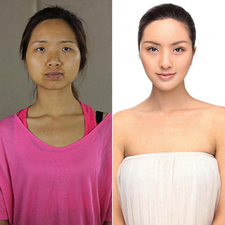 Chinese Women Plastic Surgery