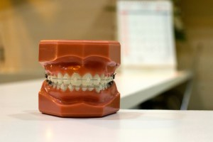 Dentists say red or swollen gums that bleed easily can be a clear sign that flossing and better dental habits are needed.