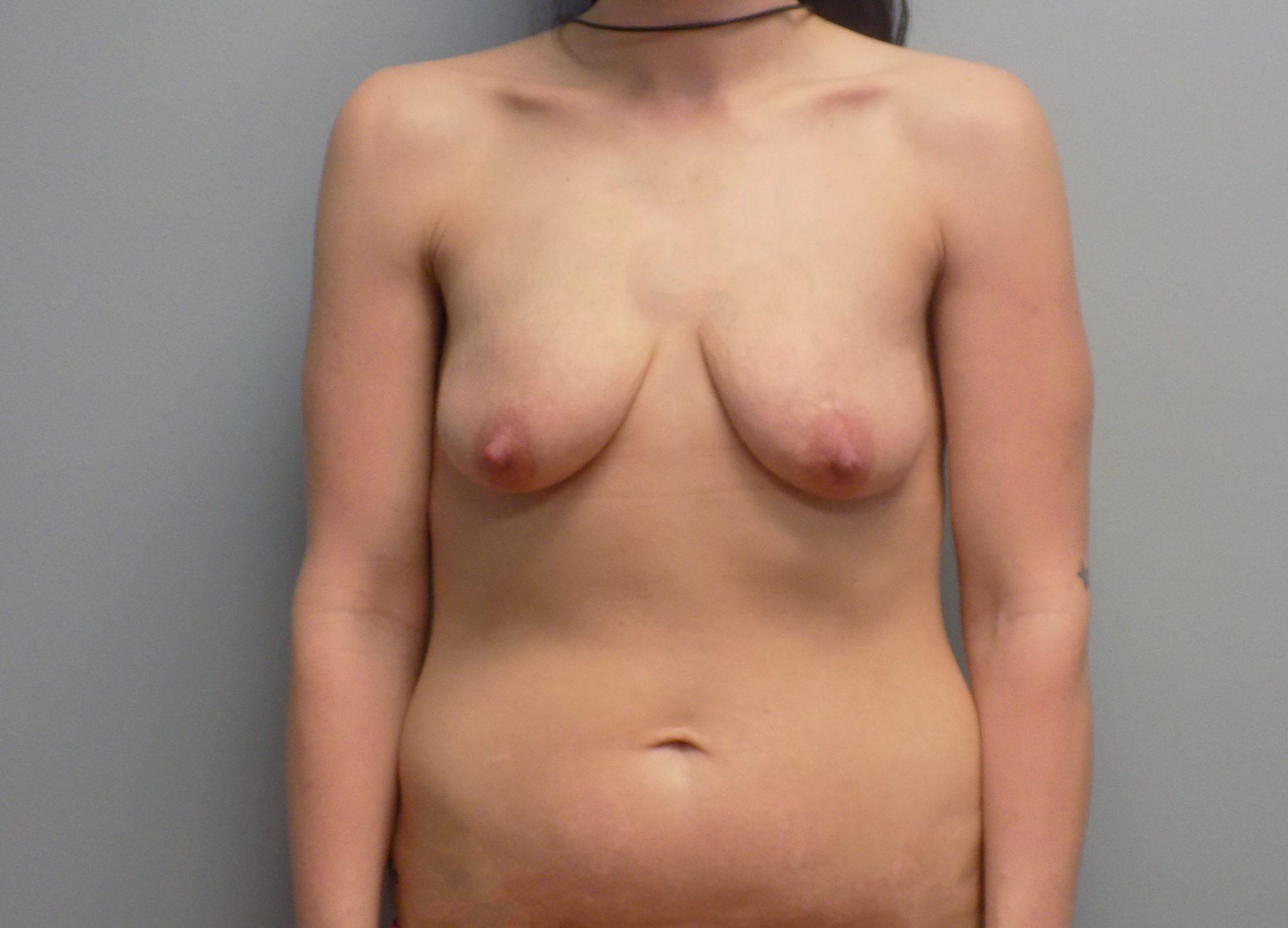 breast augmentation results board-certified plastic surgeon Charlotte NC