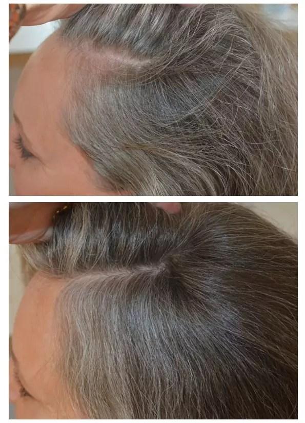 Hårklinikken før og efter