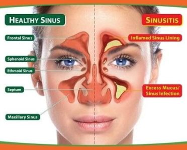 What are some ways to cure a headache behind the eyes and forehead     Frontal sinuses