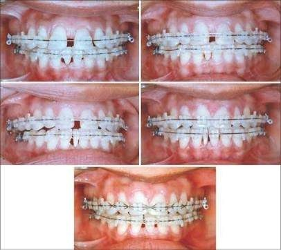 What Is The Best Way To Treat Diastema Teeth Gap Quora