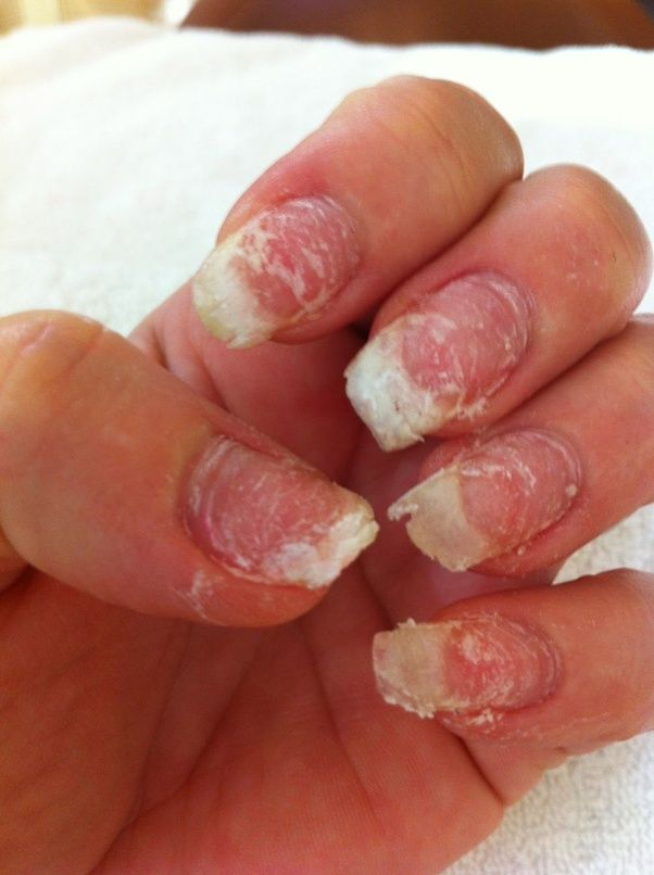 What Should You Know Before Getting Acrylic Nails Quora