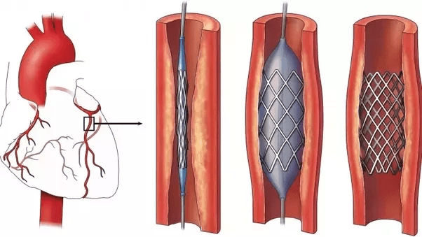 Types Stents Arteries