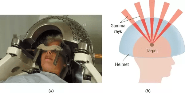 Stereotactic Radiosurgery Head Frame Images