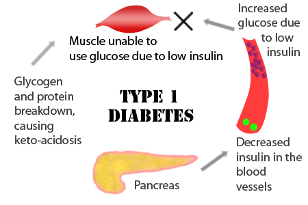 Image result for diabetes mellitus type 1