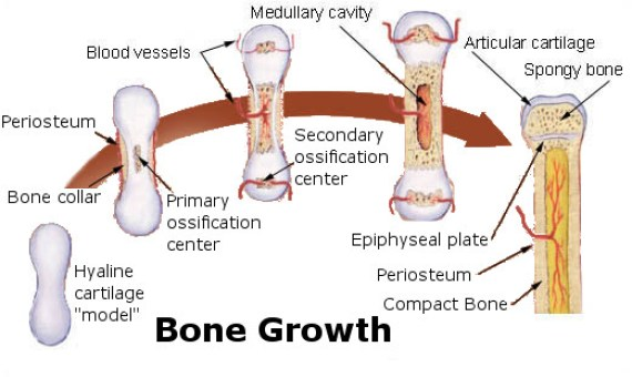 Glucocorticoid-Induced Osteoporosis