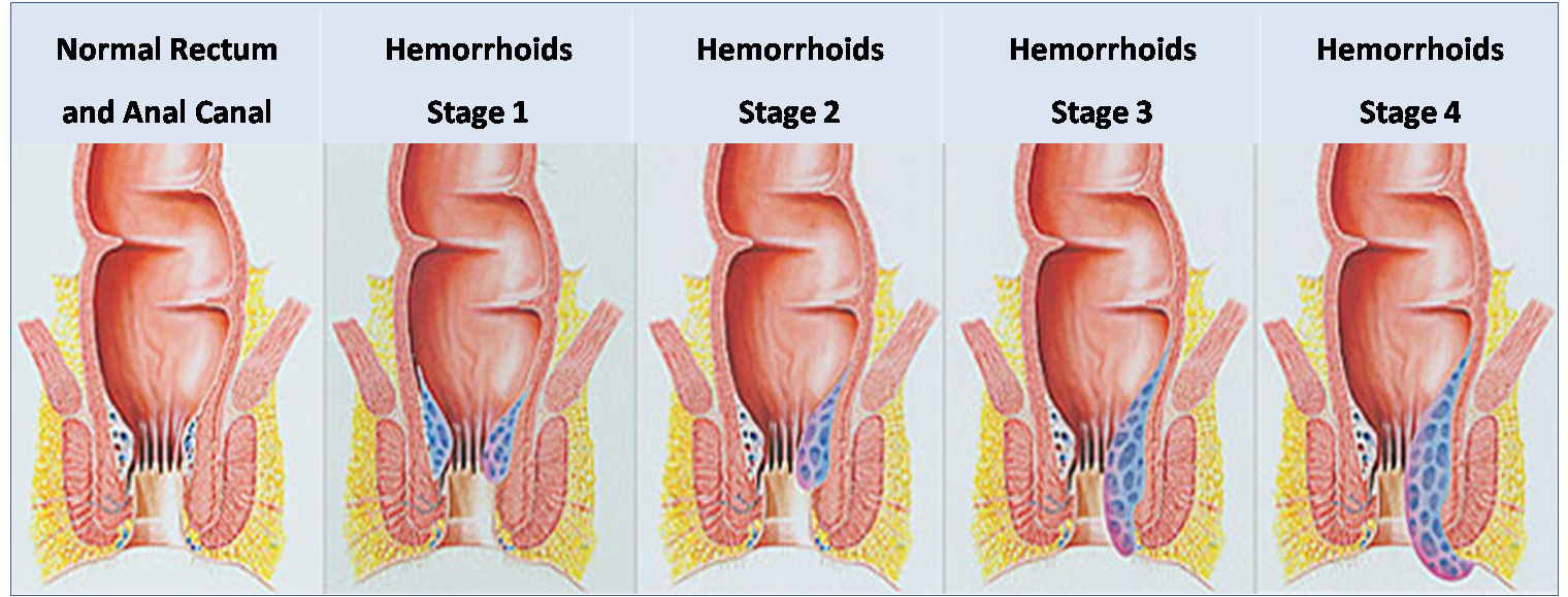 Hemorrhoids During Pregnancy Causes Symptoms And
