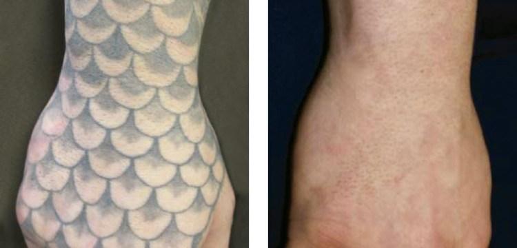 Asset Totale - Antes y después - Eliminación de tatuaje