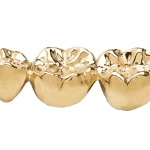 sell dental gold in Palm Harbor, Florida