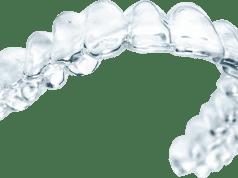neviditeľné zubné strojčeky