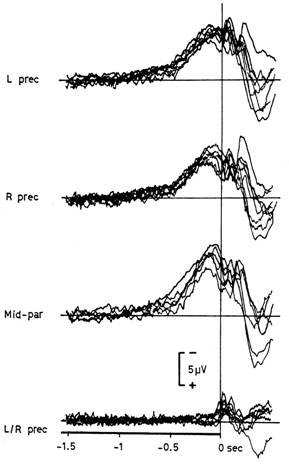 "Typical recording of the readiness potential. Benjamin Libet investigated whether this neural activity corresponded to the ""felt intention"" (or will) to move of experimental subjects"