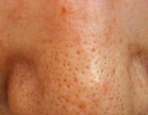 気になる鼻の毛穴。きれいにしたい!