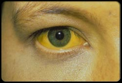 La hepatitis se refleja en los ojos.