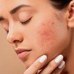 Top 5 des remèdes maison contre l'acné qui fonctionnent