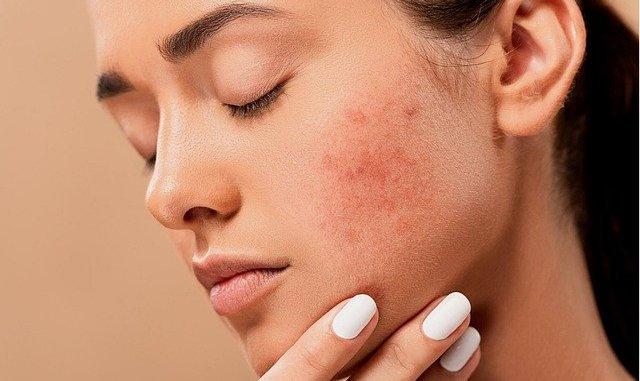comment se débarrasser des boutons d'acné