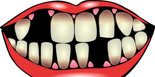 Soñar que se caen los dientes