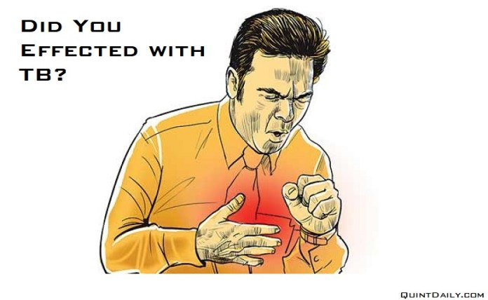 Tuberculosis #Tuberculosis quintdaily.com