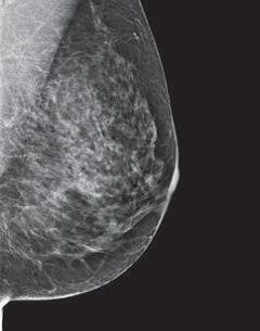 More of the breast is made of dense glandular and fibrous tissue. This can make it hard to see small tumors in or around the dense tissue.