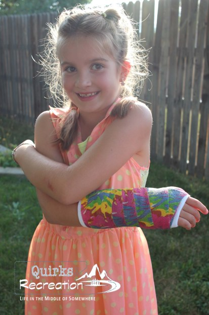 girl showing her cast on her broken wrist