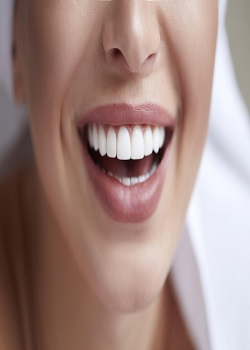 Teeth After Braces Homemade Remedies For Whiter Teeth The Natural Way_Image Source Google