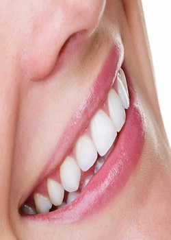 Teeth Whitening Cost Is Free Want Help On Getting White Teeth? Read These Tips_Image Source Google