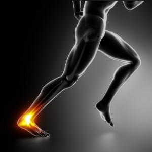 Stem cells for achilles tendonitis