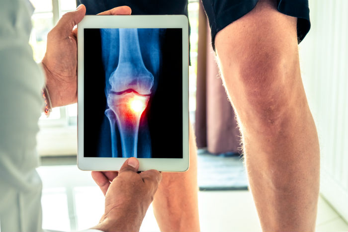 Doctor holds up tablet with knee osteoarthritis photo