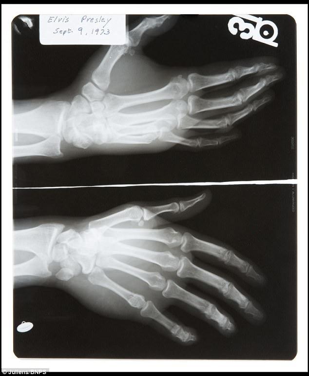 貓王手掌骨折的 X 光片