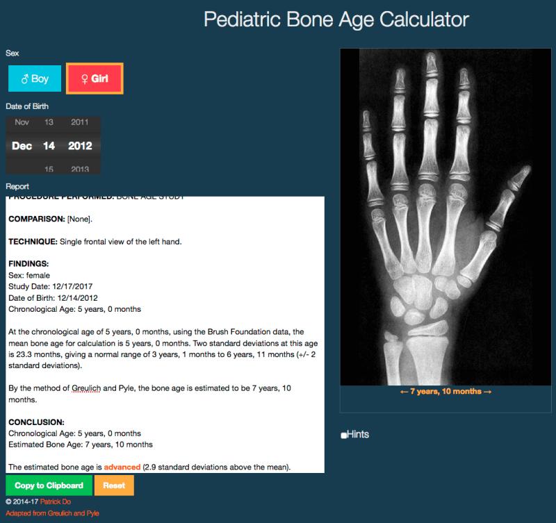 patrick-do-bone-age