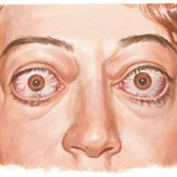 Doença de Graves: risco para nossa saúde ocular