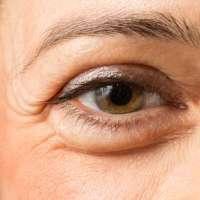 5 coisas que você precisa saber sobre a pele ao redor dos olhos