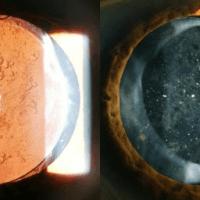 Opacidade da cápsula Posterior