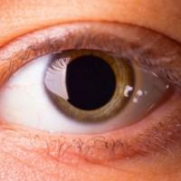 Exame oftalmológico: por que é preciso dilatar a pupila?