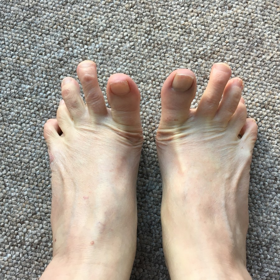 How to keep your feet healthy with simple stretches