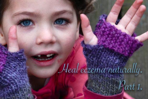Heal eczema - naturally.   Clean. the LuSa Organics Blog